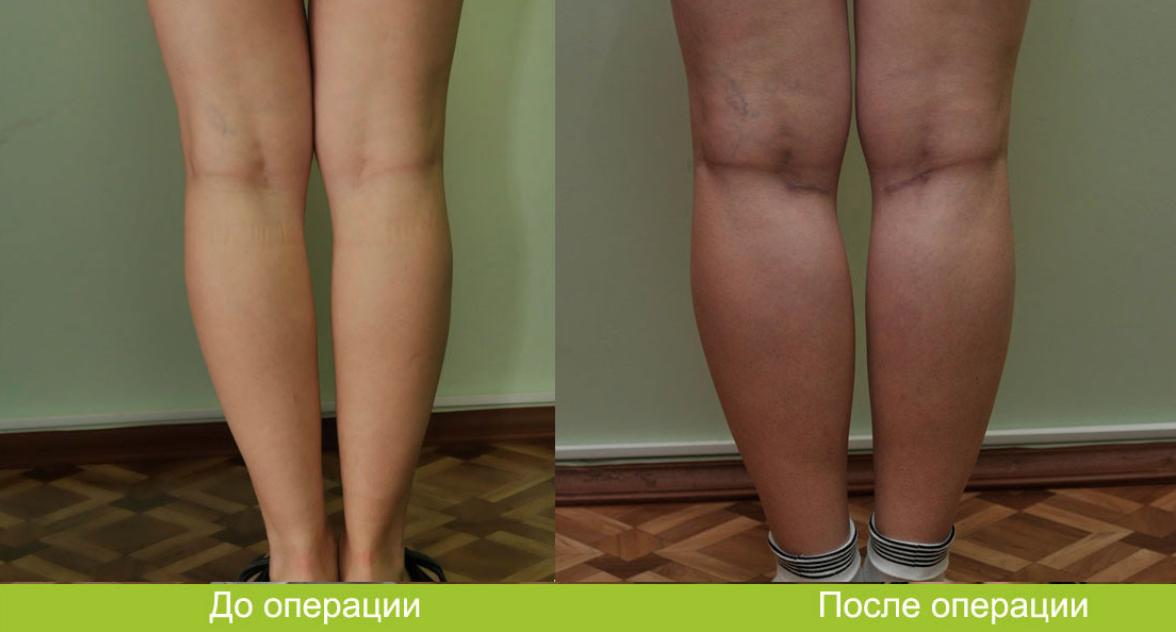 Как похудеть икры на ногах девушке отзывы