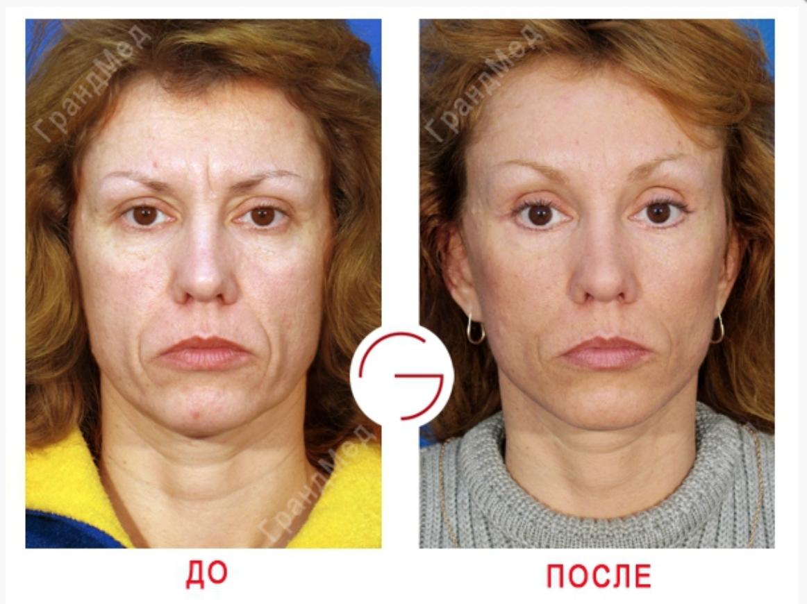 Восстановить кожу лица после похудения